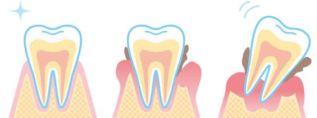虫歯・歯槽膿漏・歯茎が下がる