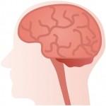 くも膜下出血の原因